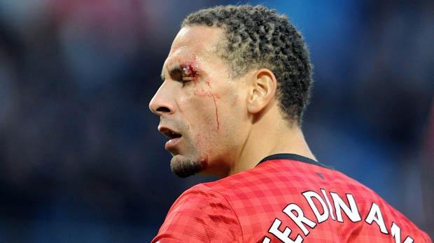 Rio Ferdinand Manchester United City derby racism