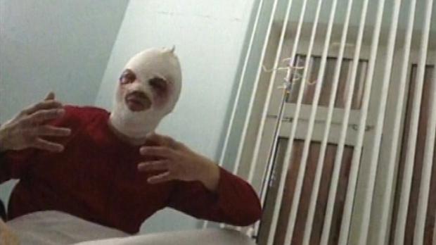 Bolshoi Theater director Sergei Filin acid attack