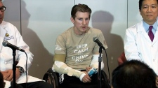 Soldier receives double arm transplant