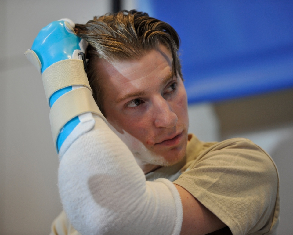 Retired Infantryman Brendan M. Marrocco uses his transplanted arm to brush his hair back during a news conference Tuesday, Jan. 29. 2013 at Johns Hopkins hospital in Baltimore. (AP /Gail Burton)