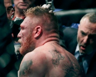 Brock Lesnar is tended by a cut man after a UFC mixed martial arts match with Cain Velasquez in Anaheim, Calif., on Saturday, Oct. 23, 2010. (AP Photo/Jae C. Hong)