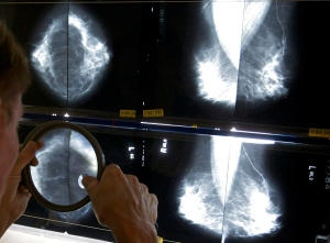 A radiologist uses a magnifying glass to check mammograms for breast cancer in Los Angeles, May 6, 2010. (AP/ Damian Dovarganes)