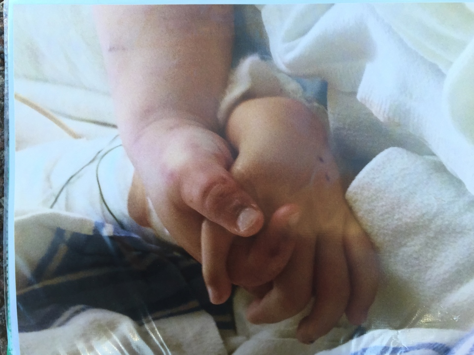 Jennifer Neville-Lake showed reporters this photo of two of her children holding hands in a hospital bed shortly before the parents turned off the machines that were keeping them alive. (Rena Heer/ CP24)