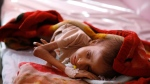 In this Jan. 24, 2016 file photo, a malnourished child lies in a bed waiting to receive treatment at a therapeutic feeding center in a hospital in Sanaa, Yemen. The U.N. secretary-general and high-ranking government officials from dozens of countries are meeting Tuesday, April 25, 2017, in Geneva to drum up funds for war-torn Yemen. The impoverished Mideast country on the tip of the Arabian Peninsula is considered the world's greatest humanitarian crisis. (AP Photo/Hani Mohammed, File)