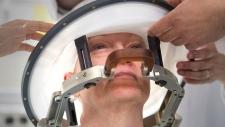 ultrasound brain treatment