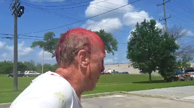 A cyclist is bloodied after being attacked by a driver with a club in an apparent road rage incident in Peterborough on July 18, 2017.