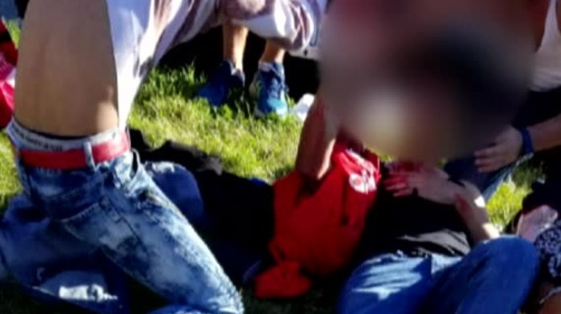 A teenage boy is seen on the ground near a Scarborough high school after he was stabbed on Oct. 17, 2017. His face has been blurred due to the graphic nature of the content as well as to protect his identity. (Provided)