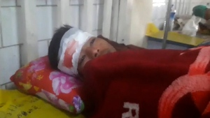 In this Tuesday, Jan. 16, 2018, image made from video, a man recovers from a head wound in a hospital after being allegedly involved in a protest confrontation with police during a local festival in the ancient city of Mrauk-U, Rakhine, western Myanmar. Officials say local police opened fire at hundreds of protesters angry about a ban on a local festival, killing seven people. (DVB via AP)