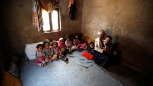 In this Monday, March 28, 2016 photo, Faisal Ahmed, whose infant son, Udai Faisal, died of severe acute malnutrition, sits with his nine remaining children at his house in Hazyaz village on the southern outskirts of Sanaa, Yemen.The federal government will provide another $12.1 million to help the people of Yemen survive what the United Nations has called the world's worst humanitarian crisis. THE CANADIAN PRESS/AP-Hani Mohammed