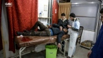This photo released on Tuesday Feb. 20, 2018 provided by the Syrian anti-government activist group Ghouta Media Center, which has been authenticated based on its contents and other AP reporting, shows a Syrian paramedic, right, treats an injured man who was wounded by the shelling of the Syrian government forces, at a makeshift hospital, in Ghouta, suburb of Damascus, Syria. A Syrian monitoring group and paramedics say government shelling and airstrikes on rebel-held suburbs of the capital, Damascus, killed at least 98 people on Monday. (Ghouta Media Center via AP)