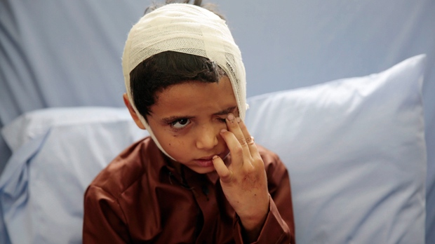Saudi-led Coalition Admits 'Mistakes' In Yemen Airstrike That Killed 40 Children