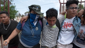 A wounded demonstrator is helped off the street after a peaceful anti-government march was dissolved violently by the police, in Managua, Nicaragua, Sunday, Sept. 23, 2018. (AP Photo/Oscar Navarrete)