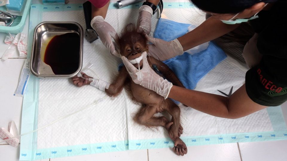 In this photo taken on Sunday, March 17, 2019, a veterinarian and a volunteer of Sumatra Orangutan Conservation Programme (SOCP) tend to a three-month old baby orangutan named 'Brenda' that was evacuated from a village with a broken arm, prior to a surgery at SOCP facility in Sibolangit, North Sumatra, Indonesia. Orangutan populations in Indonesia's Borneo and Sumatra island are facing severe threats from habitat loss, illegal logging, fires and poaching. Conservationists predicted that without immediate action, orangutans are likely to be the first great ape to become extinct in the wild. (AP Photo/Binsar Bakkara)