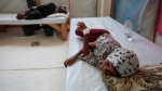 In this Sept. 27, 2018 file photo, a girl is treated for a suspected cholera infection at a hospital in Hodeida, Yemen. (AP Photo/Hani Mohammed, File)