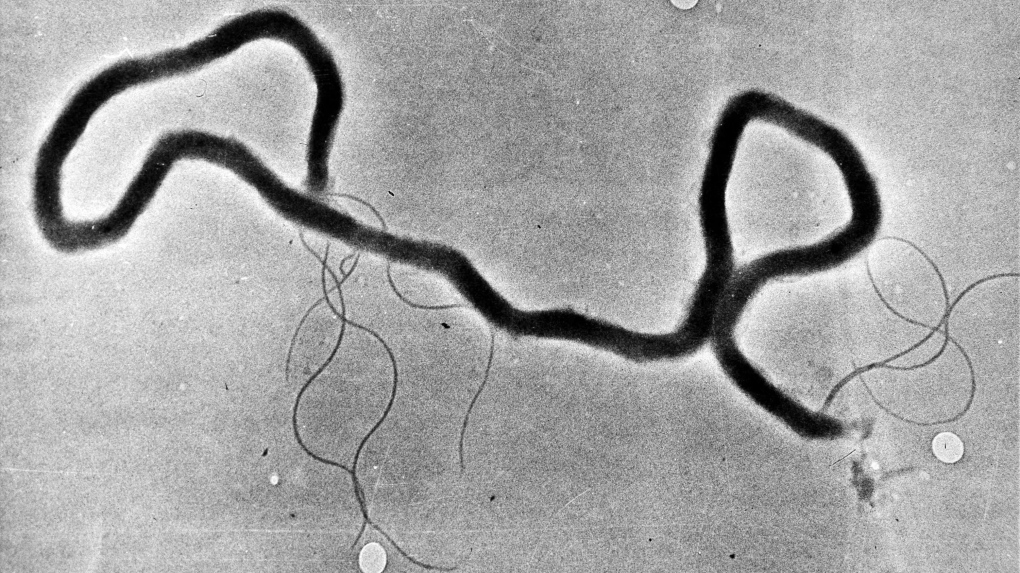 Alberta declares syphilis outbreak amid highest rates since 1948