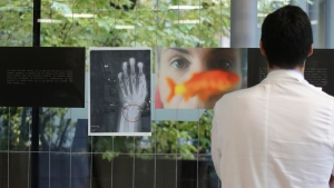 A doctor looks at a a photograph and an x-ray of a woman's broken wrist displayed during the exhibition 'Invisibility is not a super power' which includes x-ray's of anonymous women who arrived at the hospital's emergency room claiming to be victims of violence, at the San Carlo Hospital, in Milan, Italy, Friday, Nov. 22, 2019. (AP Photo/Luca Bruno)