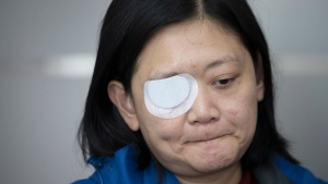 In this Wednesday, Dec. 4, 2019, photo, Veby Mega Indah, an injured Indonesian video journalist, bites her lips during an interview with The Associated Press in the Wan Chai area of Hong Kong. (AP Photo/Vincent Thian)
