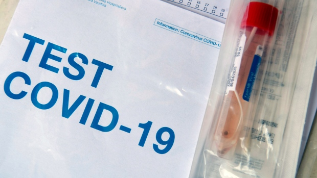 A COVID-19 test is ready to be sent to a laboratory after a medical worker took a swab at a drive-in testing facility. (Laurent Gillieron/Keystone via AP)
