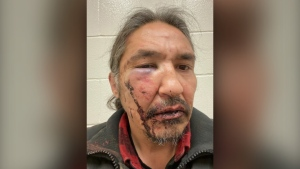 Athabasca Chipewayan Chief Allan Adam is shown in a handout photo. The chief of a northern Alberta First Nation is calling for the government to investigate after he alleges RCMP assaulted him during an arrest that he says began over a simple matter of expired registration tags on his truck. THE CANADIAN PRESS/HO-Allan Adam MANDATORY CREDIT