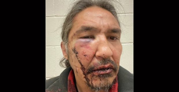 Minister 'deeply concerned' about brutality claims during Indigenous chief's arrest