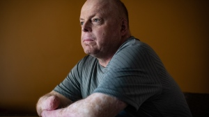 Rick Thompson, who had all of his limbs amputated after contracting bacterial meningitis and septic shock in 2015, poses for a photograph in Coquitlam, B.C., on Monday, March 9, 2020. Thompson moved to London, Ont., from British Columbia in April to prepare for double-hand transplant surgery, which involves medical and psychological tests, as well as finding a donor. THE CANADIAN PRESS/Darryl Dyck