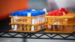 Specimens to be tested for COVID-19 are seen at LifeLabs after being logged upon receipt at the company's lab, in Surrey, B.C., on Thursday, March 26, 2020. The doctor overseeing Canada's COVID-19 antibody research says we should get the first glimpse of how many Canadians may already have had COVID-19 by the middle of this month. THE CANADIAN PRESS/Darryl Dyck