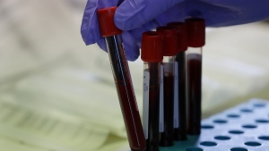 Blood samples from volunteers are handled in the laboratory at Imperial College in London, Thursday, July 30, 2020. (AP Photo/Kirsty Wigglesworth)