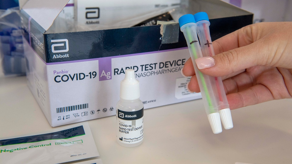 Covid-19 Rapid Test Device kits at Humber River Hospital in Toronto on Tuesday November 24, 2020.  THE CANADIAN PRESS/Frank Gunn
