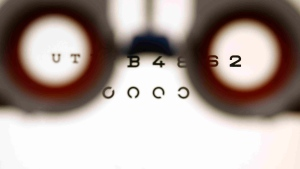 An optometrist holds glasses in front a lightbox during an eyesight test in Bremen, Germany, on Friday, Jan. 16, 2009. THE CANADIAN PRESS/AP/Joerg Sarbach