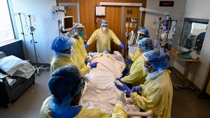 Health-care staff get ready to prone a 47-year-old woman who has COVID-19 and is intubated on a ventilator in the intensive care unit at the Humber River Hospital during the COVID-19 pandemic in Toronto on Tuesday, April 13, 2021. THE CANADIAN PRESS/Nathan Denette