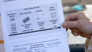 A general practitioner shows the information sheet about the risk of blood clots that is given to people who are injected with the AstraZeneca vaccine against COVID-19 during a campaign in Amsterdam, Netherlands, Wednesday, April 14, 2021. (AP Photo/Peter Dejong)