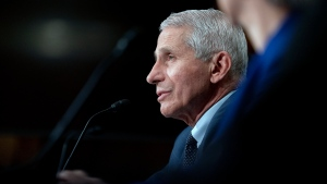 Dr. Anthony Fauci, director of the National Institute of Allergy and Infectious Diseases, testifies before the Senate Health, Education, Labor, and Pensions Committee hearing, Tuesday, July 20, 2021, on Capitol Hill in Washington. (Stefani Reynolds/The New York Times via AP, Pool)