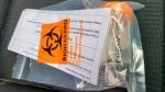 A PCR Saliva-based COVID-19 test kit is seen on Oct. 28, 2021. (Chris Herhalt/CP24)